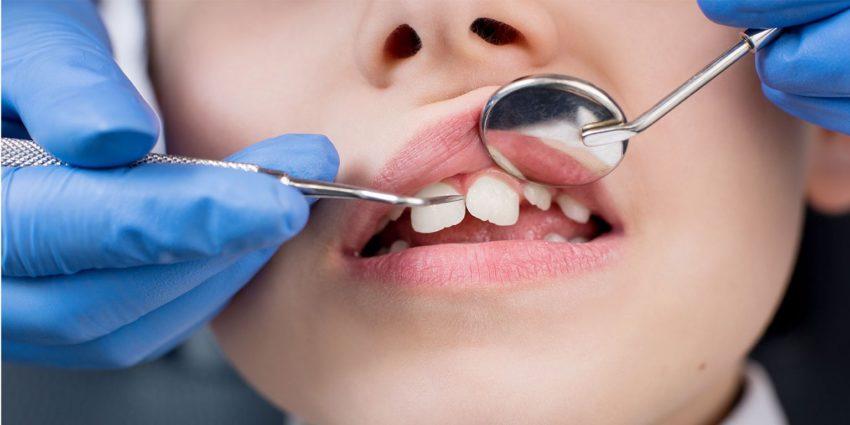 Що робити коли болить зуб у дитини?
